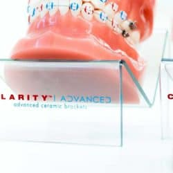 Clarity-Advanced-Clear-Braces-24-5