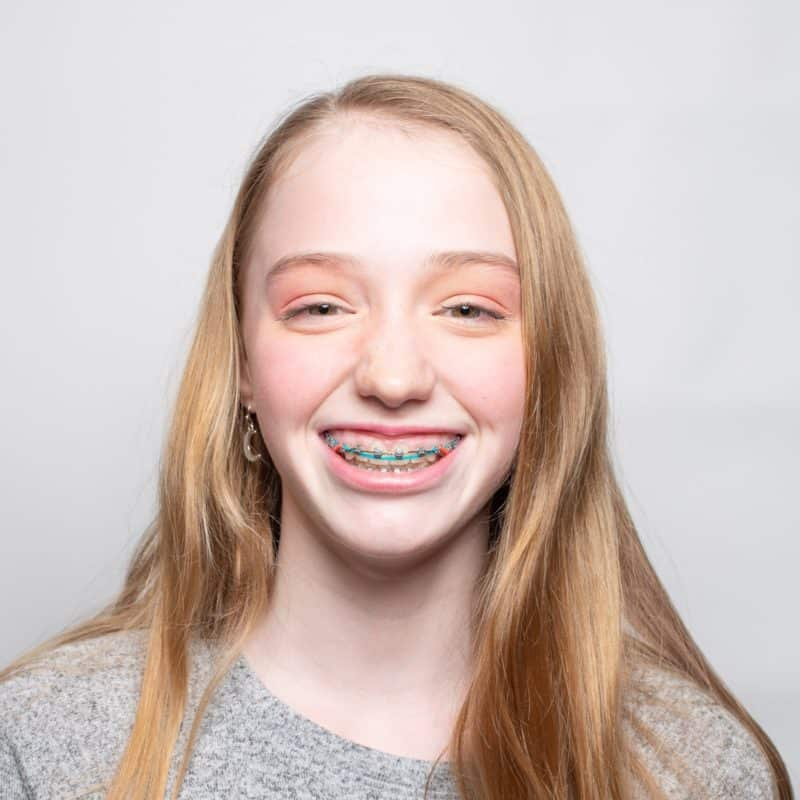Datwyler Orthodontics El Dorado Hills Orthodontist Patient Photos Squares 2019 14 1 800x800 - Our Patients' Smiles